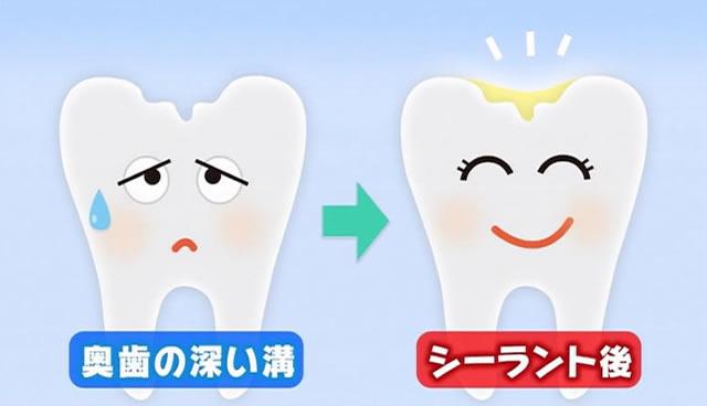 奥歯の深い溝とシーラント後の歯のイメージ