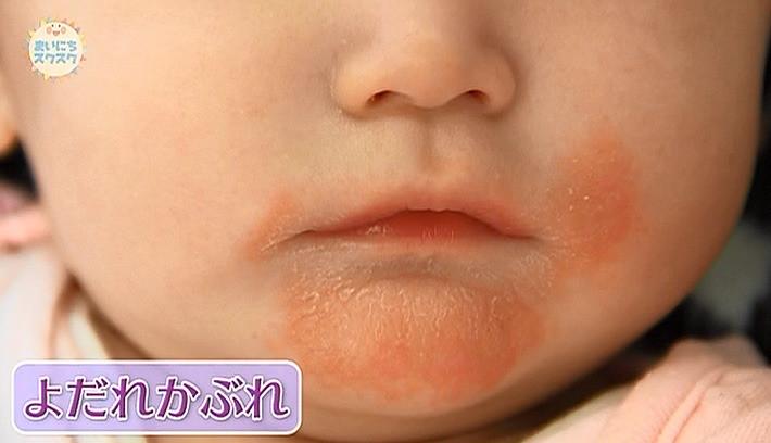 写真 の 周り 子供 口 湿疹