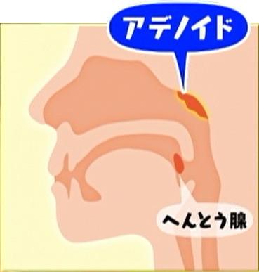 中耳炎 寝る 向き