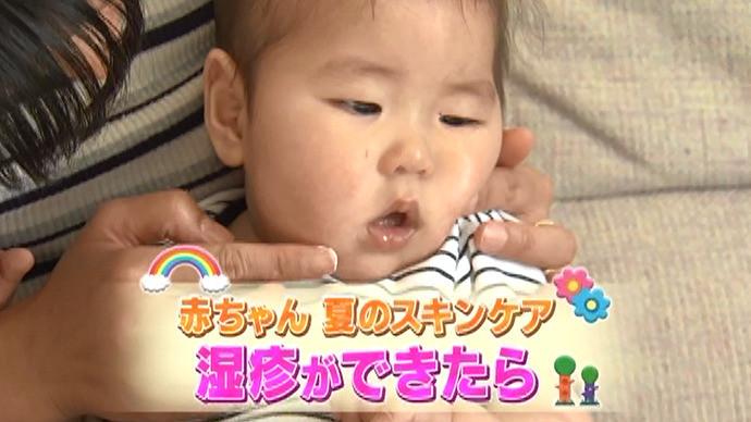 赤ちゃん 夏のスキンケア(4)湿疹ができたら